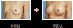 人工乳腺法