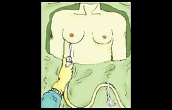 偽性女性化乳房の手術