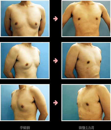 偽性女性化乳房の脂肪吸引による治療