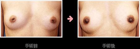 陥没乳頭:皮下軟部組織弁を利用した当院独自の術式