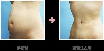 腹部脂肪皮膚切除