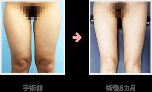 大腿全周+下腿