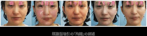 頬脂肪吸引の「拘縮」の経過