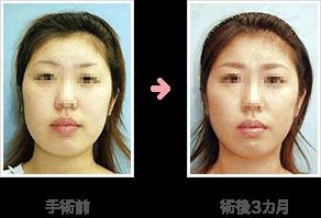 頬の脂肪吸引