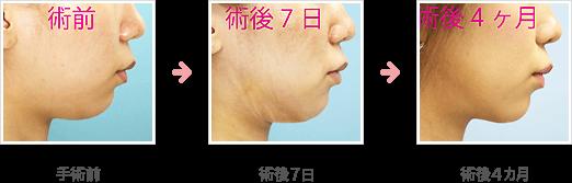 二重顎の脂肪吸引