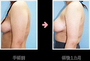上腕の脂肪吸引