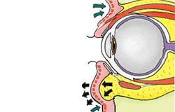 下瞼の脂肪の脱出