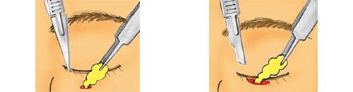 従来の下瞼脱脂手術