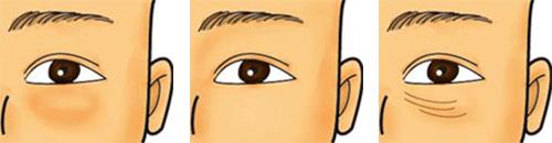 経結膜法脱脂の合併症2