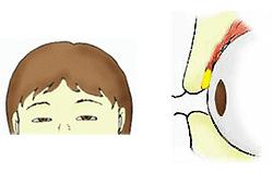 眼瞼下垂・眼瞼挙筋が有効に効かない状態