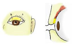 挙筋短縮:結膜切開アプローチ