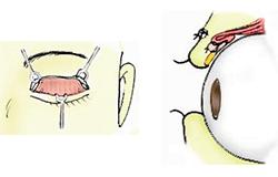 挙筋短縮:皮膚切開アプローチ