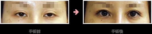 経結膜挙筋短縮法症例A