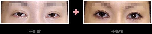 経結膜挙筋短縮法症例B