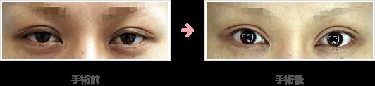 全切開たるみ取り+挙筋短縮法(前転法)症例A