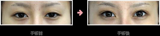 全切開たるみ取り+挙筋短縮法(前転法)症例B