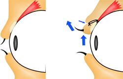 二重になると、なぜ目が大きくなるのか