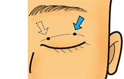 脱脂の穴の位置