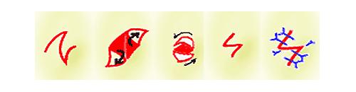 目頭切開Z法の皮弁の交換