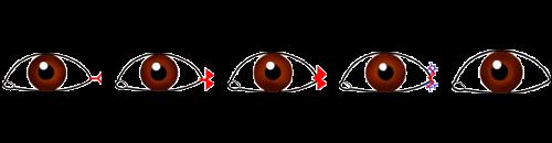 目尻切開の術式