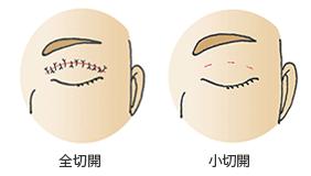 全切開と小切開の閉瞼時の傷(術直後)
