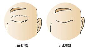 全切開と小切開の閉瞼時の傷(術直6ヶ月以降)