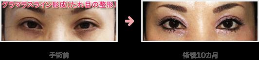 下眼瞼切開:グラマラスライン形成(たれ目の整形)