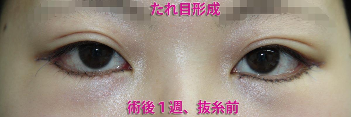 下眼瞼切開:ケーブルスーチャー併用・脱脂した眼窩脂肪のクマへの注入術例