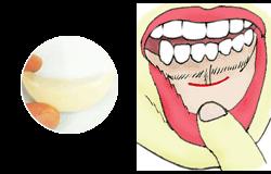 あごの粘膜切開の部位とプロテーゼ