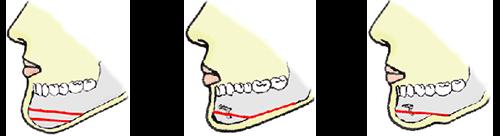 あごの骨切り・骨削り
