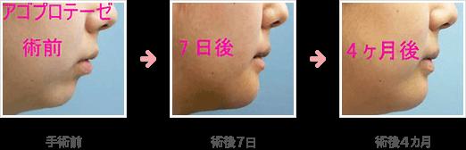 あごのプロテーゼ症例A