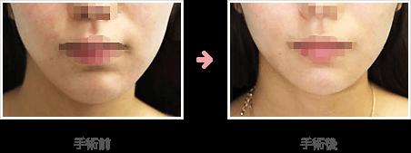 あごの骨切り・骨削り症例A