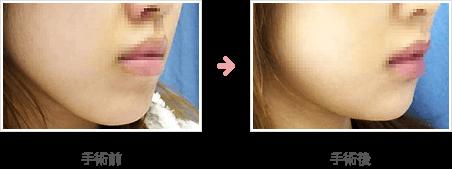 二重あごの脂肪吸引症例B