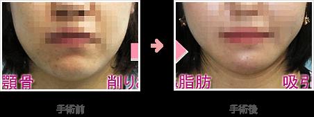 あごの骨切り・骨削り:Vライン形成