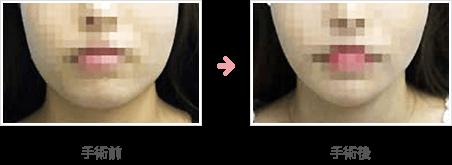あごの骨切り・骨削り+脂肪吸引
