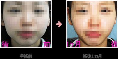 バッカルファット除去の症例B