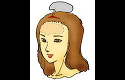 額のシリコンプロテーゼ挿入
