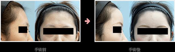 額の整形(小切開・ハイドロキシアパタイト)症例A