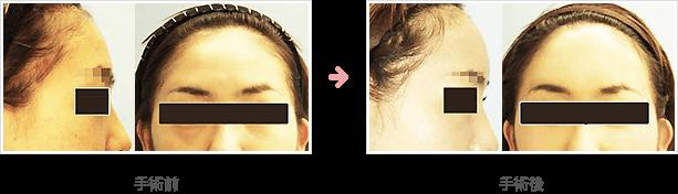 額の整形(小切開・ハイドロキシアパタイト)症例B