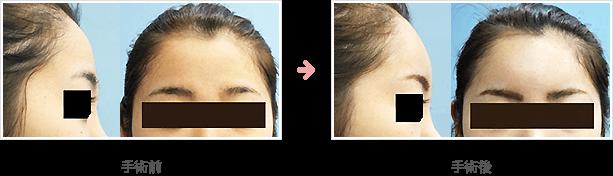 額の整形(小切開・ハイドロキシアパタイト)症例C