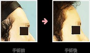 額の整形(小切開・ハイドロキシアパタイト+鼻シリコンプロテーゼ)症例A