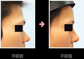 額の整形(小切開・ハイドロキシアパタイト+鼻シリコンプロテーゼ)症例B