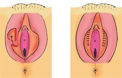 手術のバリエーション1