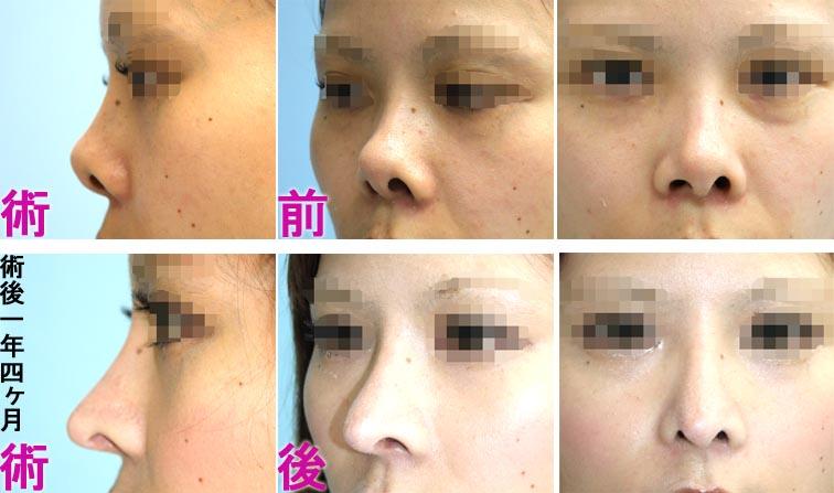 鼻中隔延長+I型シリコンプロテーゼ