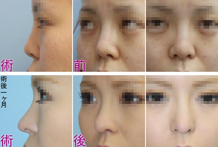 鼻中隔延長(ヒアルロン酸注入の既往)