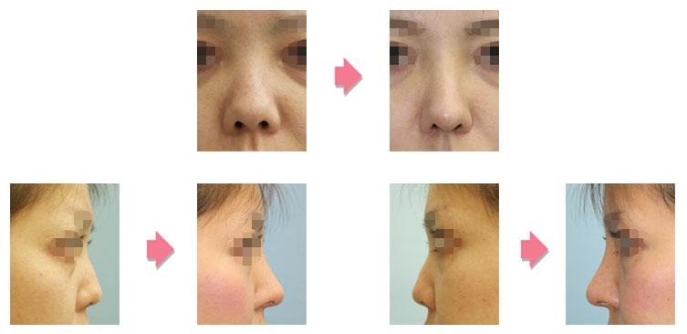 鼻中隔延長+I型肋軟骨隆鼻
