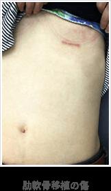 鼻中隔延長手術外側の傷