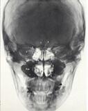 鼻中隔のレントゲン