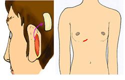 側鼻中隔延長に使う軟骨の採取と傷