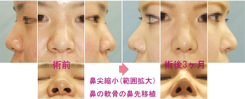 鼻尖縮小 皮下軟部組織&軟骨除去+軟骨縫合症例A